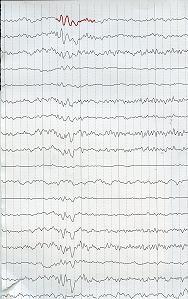 Ηλεκτροεγκεφαλογράφημα στις ΑΝΟΙΕΣ