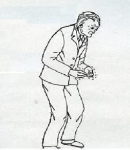 Σύνδρομο Parkinson