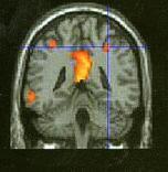 Εξαρτήσεις και εγκέφαλος