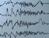 Το χαρακτηριστικό ηλεκτροεγκεφαλογράφημα των επιληπτικών κρίσεων