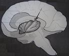 Διαταραχές της επικοινωνίας και η νήσος του εγκεφάλου