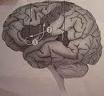 Το τραύλισμα και η λεύκη ουσία του εγκεφάλου
