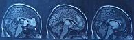 Ο μαρασμός του εγκεφάλου και η επιθετική συμπεριφορά