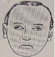 Αμφοτερόπλευρη πάρεση προσωπικού νεύρου