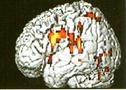 Διάχυτοι «μώλωπες» στο σώμα και διαταραχές της υπόφυσης