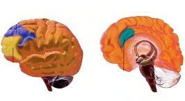 Διακρανιακός μαγνητικός ερεθισμός και μαθησιακές διαταραχές