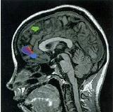 Διακρανιακός μαγνητικός ερεθισμός και συναισθησία