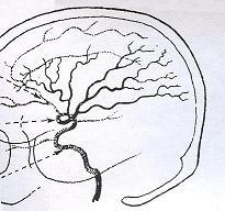 «Περίεργα» συμπτώματα σε αρτηριοφλεβώδεις δυσπλασίες