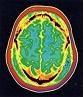 όσο σοβαρή είναι η συνύπαρξη ερυθηματώδους λύκου και νευρολογικής συμπτωματολογίας;