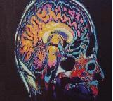 Νοητικές διαταραχές και μοριακή βιολογία