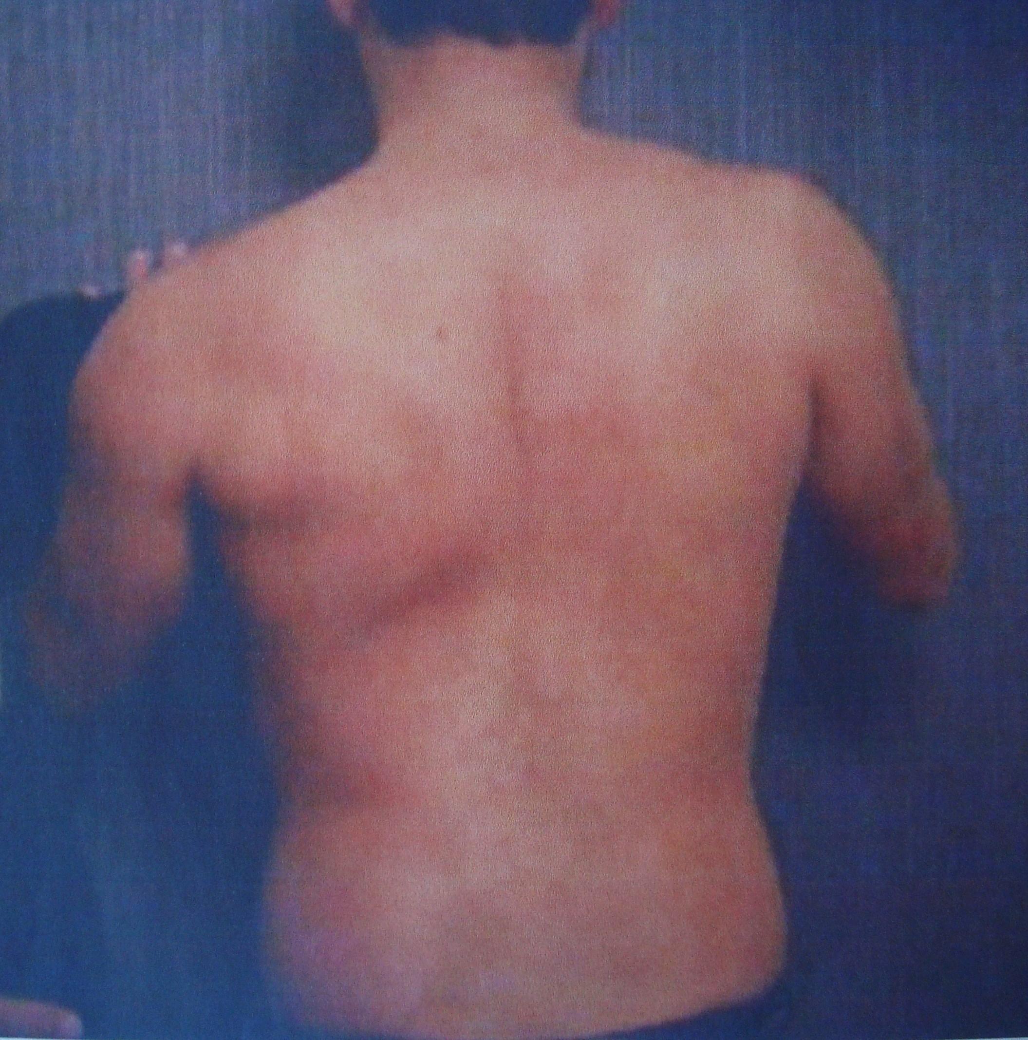Νευρολογία-ψυχιατρική-όταν «ξεφεύγει» ο ώμος (scapula alata)