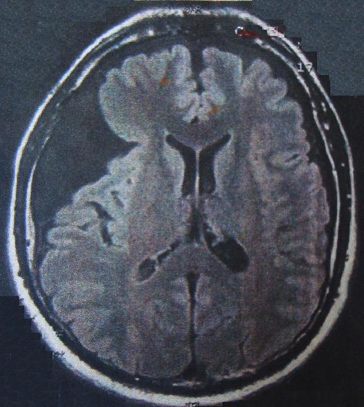 Αραχνοειδής κύστη και ψωριασική αρθρίτιδα