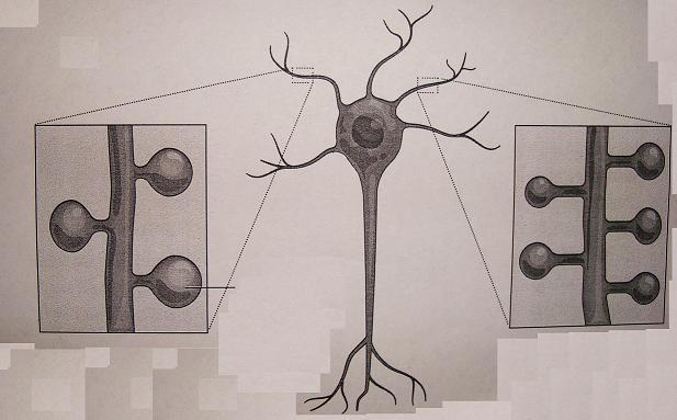 Εγκεφαλο-ιώσεις και ιδιοπαθές πάρκινσον