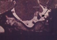 «Στενός» εγκεφαλικός πόρος και σπασμοί