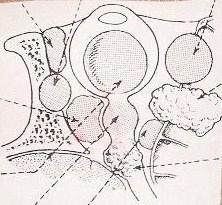 Το γλοίωμα και το μηνιγγίωμα με διαταραχές της όρασης