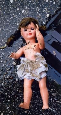 Παιδικά τραύματα
