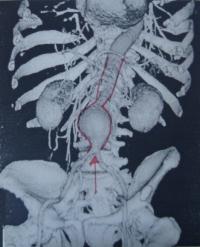 Ανευρύσματα κοιλιακής αορτής και νευρολογικές δυσλειτουργίες
