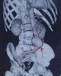 Νευρολογία-ψυχιατρική-αγγειακά ανευρύσματα