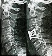 Η εκφύλιση της αυχενικής μοίρας της σπονδυλικής στήλης