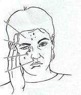 Σύνδρομα κεφαλαλγίας