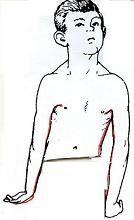Οι δυστονίες και οι κλινικές τους εκφράσεις