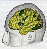Μεταβολές της σεξουαλικότητας και επιθετικότητας σε βλάβες του εγκεφάλου