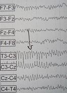 Διάφοροι σπάνιοι ρυθμοί εγκεφαλογραφήματος