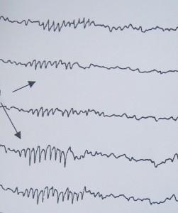 Ηλεκτροεγκεφαλογράφημα και κόπωση