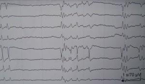 Το ηλεκτροεγκεφαλογράφημα στις βαριές εγκεφαλικές βλάβες