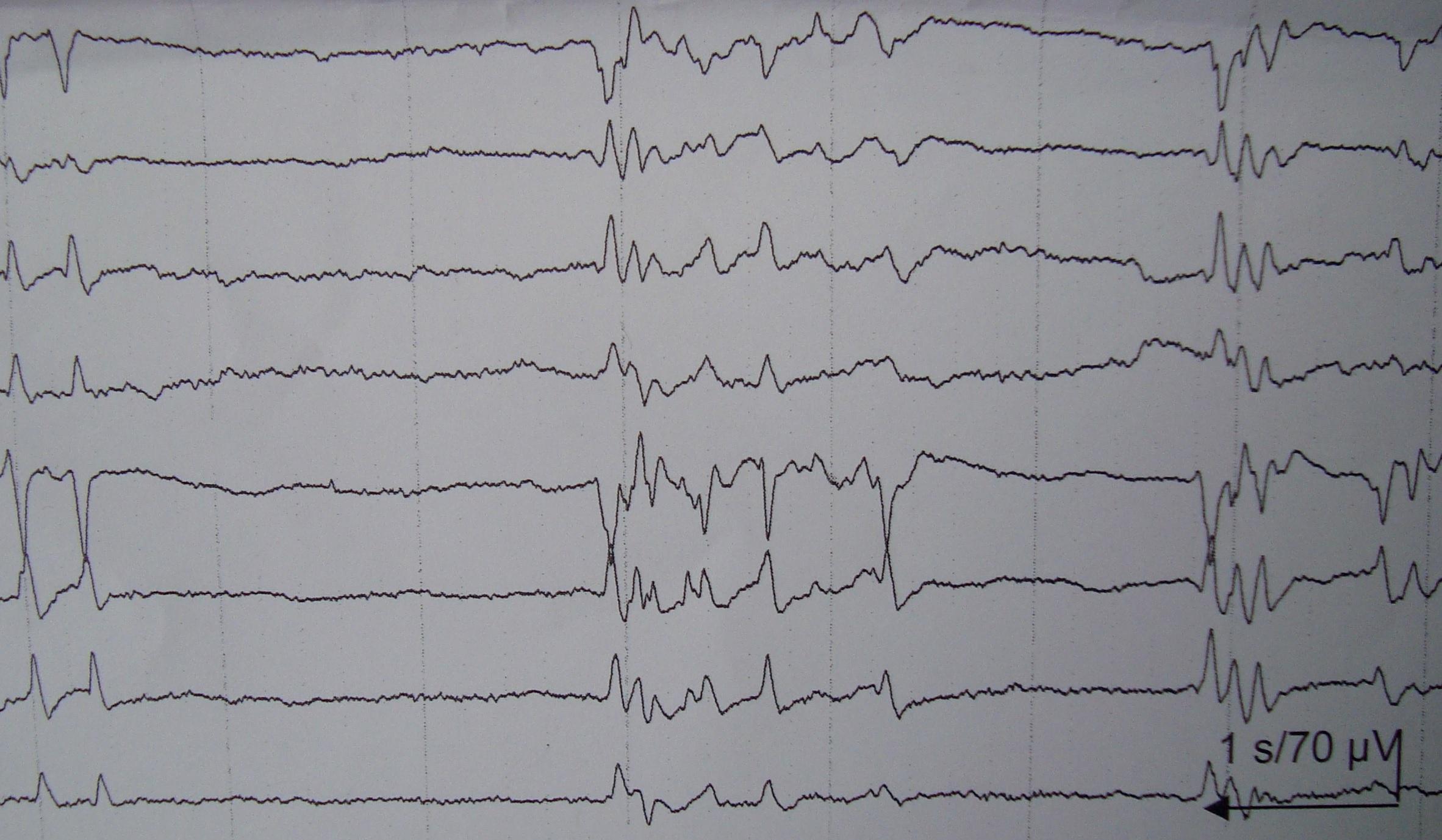 Ηλεκτροεγκεφαλογράφημα