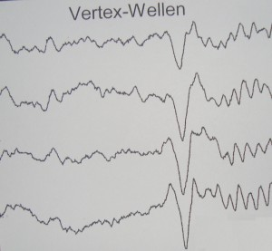 Tα «κορυφαία» κύματα του ηλεκτροεγκεφαλογραφήματος