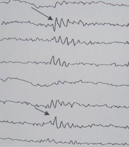 Τα κύματα του «ελαφρύ» ύπνου