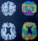 Οι αμυλοειδείς πλάκες στις νόσους Alzheimer και σκράπι