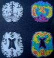 Το κοινωνικό προφίλ της νόσου του Alzheimer. jpg