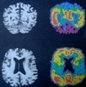 Πρωτεΐνες και η νόσος του Alzheimer