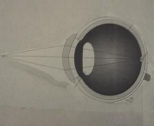 Οφθαλμός (2)