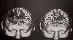 Νευρολογία-Ψυχιατρική-Ύπνος